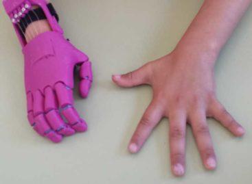 Dos estudiantes de Mataró crean una prótesis de mano para un vecino de Arenys de Mar